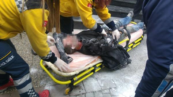 Otro turco en paro se quemó a lo bonzo enfrente del ayuntamiento